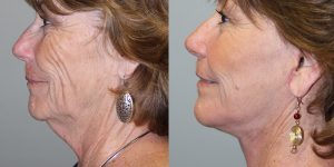 Face-and-Neck-Lift-Steven-Daines-MD-Appearance-Center-Newport-Beach-Orange-County-Plastic-Surgery.16.1
