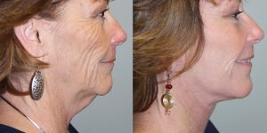 Face-and-Neck-Lift-Steven-Daines-MD-Appearance-Center-Newport-Beach-Orange-County-Plastic-Surgery.16.2
