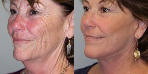 Face-and-Neck-Lift-Steven-Daines-MD-Appearance-Center-Newport-Beach-Orange-County-Plastic-Surgery.16.3