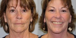 Face-and-Neck-Lift-Steven-Daines-MD-Appearance-Center-Newport-Beach-Orange-County-Plastic-Surgery.16.4