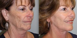 Face-and-Neck-Lift-Steven-Daines-MD-Appearance-Center-Newport-Beach-Orange-County-Plastic-Surgery.16.6