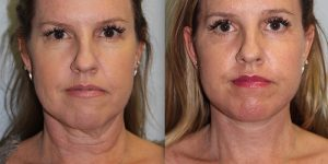 Face-and-Neck-Lift-Steven-Daines-MD-Appearance-Center-Newport-Beach-Orange-County-Plastic-Surgery.17.1