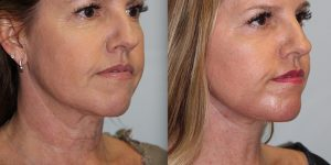 Face-and-Neck-Lift-Steven-Daines-MD-Appearance-Center-Newport-Beach-Orange-County-Plastic-Surgery.17.2