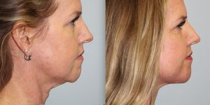 Face-and-Neck-Lift-Steven-Daines-MD-Appearance-Center-Newport-Beach-Orange-County-Plastic-Surgery.17.3