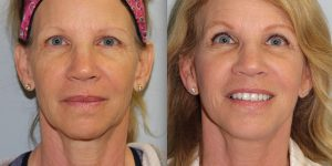 Face-and-Neck-Lift-Steven-Daines-MD-Appearance-Center-Newport-Beach-Orange-County-Plastic-Surgery.18.1