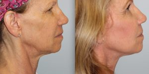Face-and-Neck-Lift-Steven-Daines-MD-Appearance-Center-Newport-Beach-Orange-County-Plastic-Surgery.18.3