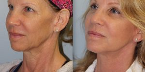 Face-and-Neck-Lift-Steven-Daines-MD-Appearance-Center-Newport-Beach-Orange-County-Plastic-Surgery.18.4