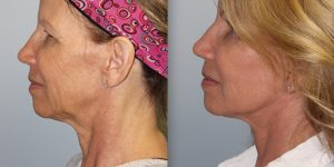 Face-and-Neck-Lift-Steven-Daines-MD-Appearance-Center-Newport-Beach-Orange-County-Plastic-Surgery.18.5