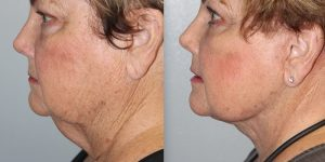 Face-and-Neck-Lift-Steven-Daines-MD-Appearance-Center-Newport-Beach-Orange-County-Plastic-Surgery.19.1