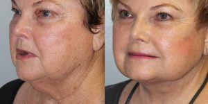 Face-and-Neck-Lift-Steven-Daines-MD-Appearance-Center-Newport-Beach-Orange-County-Plastic-Surgery.19.2