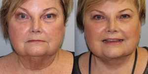 Face-and-Neck-Lift-Steven-Daines-MD-Appearance-Center-Newport-Beach-Orange-County-Plastic-Surgery.19.3