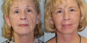Face-and-Neck-Lift-Steven-Daines-MD-Appearance-Center-Newport-Beach-Orange-County-Plastic-Surgery.2.1