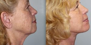 Face-and-Neck-Lift-Steven-Daines-MD-Appearance-Center-Newport-Beach-Orange-County-Plastic-Surgery.2.2