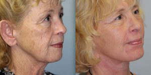 Face-and-Neck-Lift-Steven-Daines-MD-Appearance-Center-Newport-Beach-Orange-County-Plastic-Surgery.2.3
