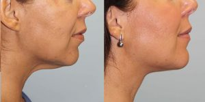 Face-and-Neck-Lift-Submentoplasty-Steven-Daines-MD-Appearance-Center-Newport-Beach-Orange-County-Plastic-Surgery.1.1