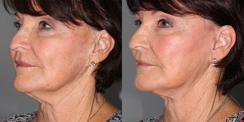 Facelift Before After