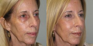 Injectable-Patient-Appearance-Center-Simon-Madorsky-MD-Radiesse-and-Restylane-to-Face-Injectable-Treatments (3)