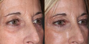 Injectable-Patient-Appearance-Center-Simon-Madorsky-MD-Radiesse-and-Restylane-to-Face-Injectable-Treatments (1)