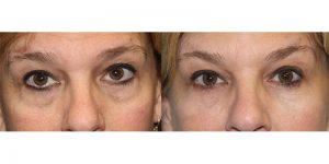 Injectable-Treatment-Eyelid-Steven-Daines-MD-Appearance-Center-Newport-Beach-Orange-County-Plastic-Surgery.9.1