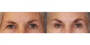 Injectable-Treatment-Steven-Daines-MD-Appearance-Center-Newport-Beach-Orange-County-Plastic-Surgery.1.1