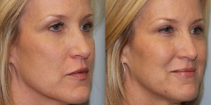 Injectable-Treatment-Steven-Daines-MD-Appearance-Center-Newport-Beach-Orange-County-Plastic-Surgery.11.2