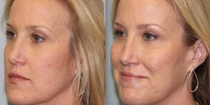 Injectable-Treatment-Steven-Daines-MD-Appearance-Center-Newport-Beach-Orange-County-Plastic-Surgery.11.3