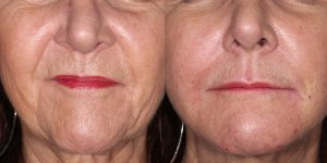 Injectable-Treatments-Restylane-Treatment-Simon-Madorsky-MD-Appearance-Center-Newport-Beach2