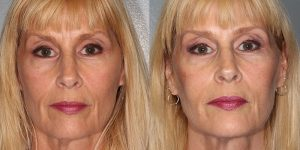 Injectable-Treatments-Voluma-to-cheeks-prejowels-upper-lip-and-naolabial-foldsSimon-Madorsky-MD-Appearance-Center-Newport-Beach