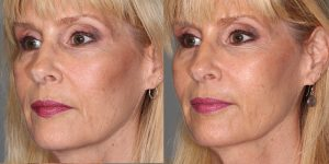 Injectable-Treatments-Voluma-to-cheeks-prejowels-upper-lip-and-naolabial-foldsSimon-Madorsky-MD-Appearance-Center-Newport-Beach2