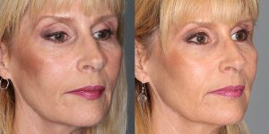Injectable-Treatments-Voluma-to-cheeks-prejowels-upper-lip-and-naolabial-foldsSimon-Madorsky-MD-Appearance-Center-Newport-Beach3