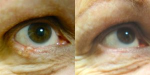 Jeffrey-Joseph-MD-Eyelid-Reconstruction-skin-cancer2