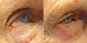 Jeffrey-Joseph-MD-Eyelid-Reconstruction-skin-cancer3