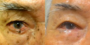Jeffrey-Joseph-MD-Eyelid-Reconstruction-skin-cancer5