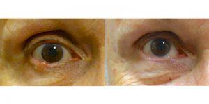 Jeffrey-Joseph-MD-Eyelid-Reconstruction-skin-cancerr