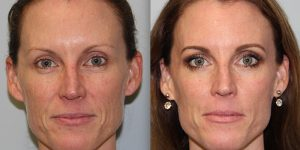 Laser-Resufacing-Steven-Daines-MD-Appearance-Center-Newport-Beach-Orange-County-Plastic-Surgery.10.1