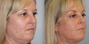 Laser-Resufacing-Steven-Daines-MD-Appearance-Center-Newport-Beach-Orange-County-Plastic-Surgery.11.2