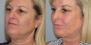 Laser-Resufacing-Steven-Daines-MD-Appearance-Center-Newport-Beach-Orange-County-Plastic-Surgery.11.3