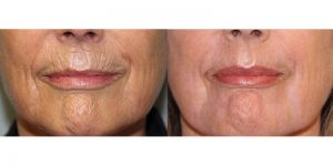 Laser-Resufacing-Steven-Daines-MD-Appearance-Center-Newport-Beach-Orange-County-Plastic-Surgery.15.1