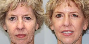 Laser-Resufacing-Steven-Daines-MD-Appearance-Center-Newport-Beach-Orange-County-Plastic-Surgery.2.1