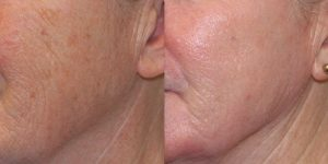 Laser-Resufacing-Steven-Daines-MD-Appearance-Center-Newport-Beach-Orange-County-Plastic-Surgery.6.2