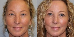 Laser-Resufacing-Steven-Daines-MD-Appearance-Center-Newport-Beach-Orange-County-Plastic-Surgery.7.1