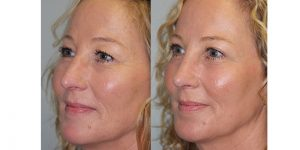 Laser-Resufacing-Steven-Daines-MD-Appearance-Center-Newport-Beach-Orange-County-Plastic-Surgery.7.2