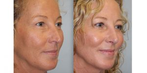 Laser-Resufacing-Steven-Daines-MD-Appearance-Center-Newport-Beach-Orange-County-Plastic-Surgery.7.3