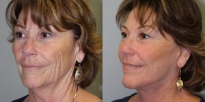 Laser-Resufacing-Steven-Daines-MD-Appearance-Center-Newport-Beach-Orange-County-Plastic-Surgery.8.1
