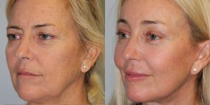 Laser-Resufacing-Steven-Daines-MD-Appearance-Center-Newport-Beach-Orange-County-Plastic-Surgery.9.1