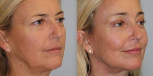 Laser-Resufacing-Steven-Daines-MD-Appearance-Center-Newport-Beach-Orange-County-Plastic-Surgery.9.3