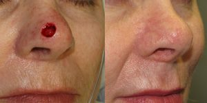 Nose-Reconstruction-After-Skin-Cancer-Excision-Skin-Cancer-And-Reconstructive-Surgery-Center-Newport-Beach-Orange-County5
