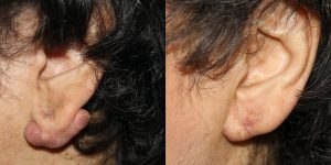 Otoplasty-Steven-Daines-MD-Appearance-Center-Newport-Beach-Orange-County-Plastic-Surgery 6.1