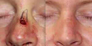 Reconstruction-Steven-Daines-MD-Appearance-Center-Newport-Beach-Orange-County-Plastic-Surgery2.1