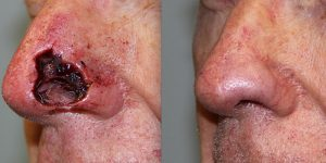 Reconstruction-Steven-Daines-MD-Appearance-Center-Newport-Beach-Orange-County-Plastic-Surgery10.1
